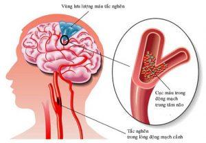 rối loạn tiền đình do thiếu máu
